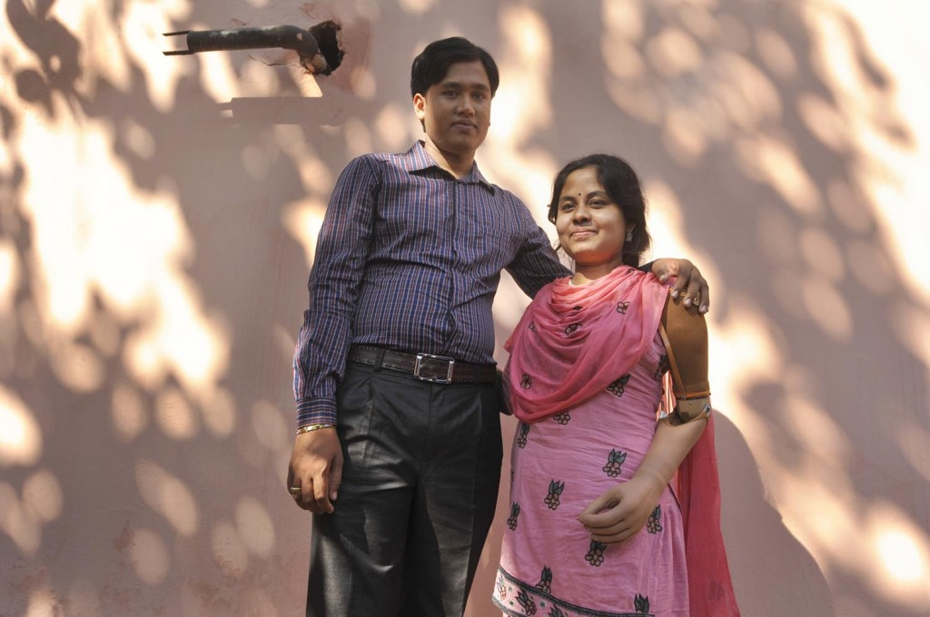 Garment worker Laboni, stands with her husband, she lost her left hand at Rana Plaza collapse.